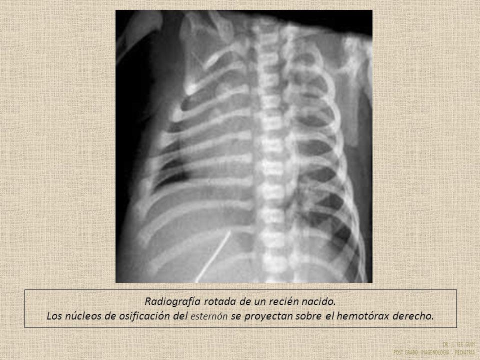 DR. J. YEE GUIM POST GRADO IMAGENOLOGIA - PEDIATRIA Radiografía rotada de un recién nacido. Los núcleos de osificación del esternón se proyectan sobre