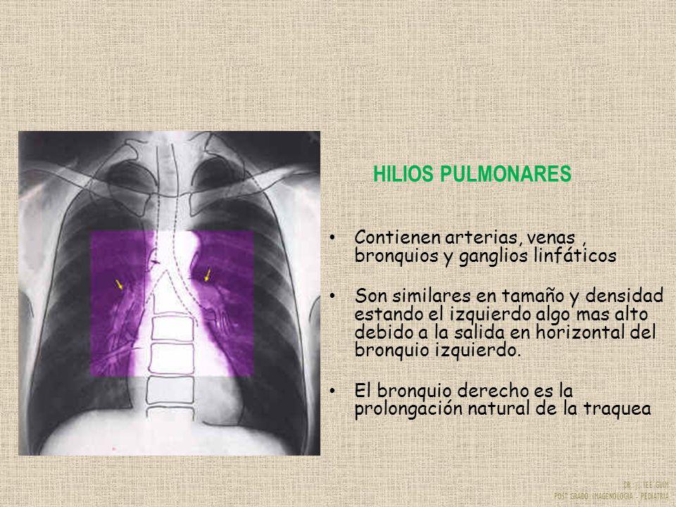 DR. J. YEE GUIM POST GRADO IMAGENOLOGIA - PEDIATRIA HILIOS PULMONARES Contienen arterias, venas, bronquios y ganglios linfáticos Son similares en tama