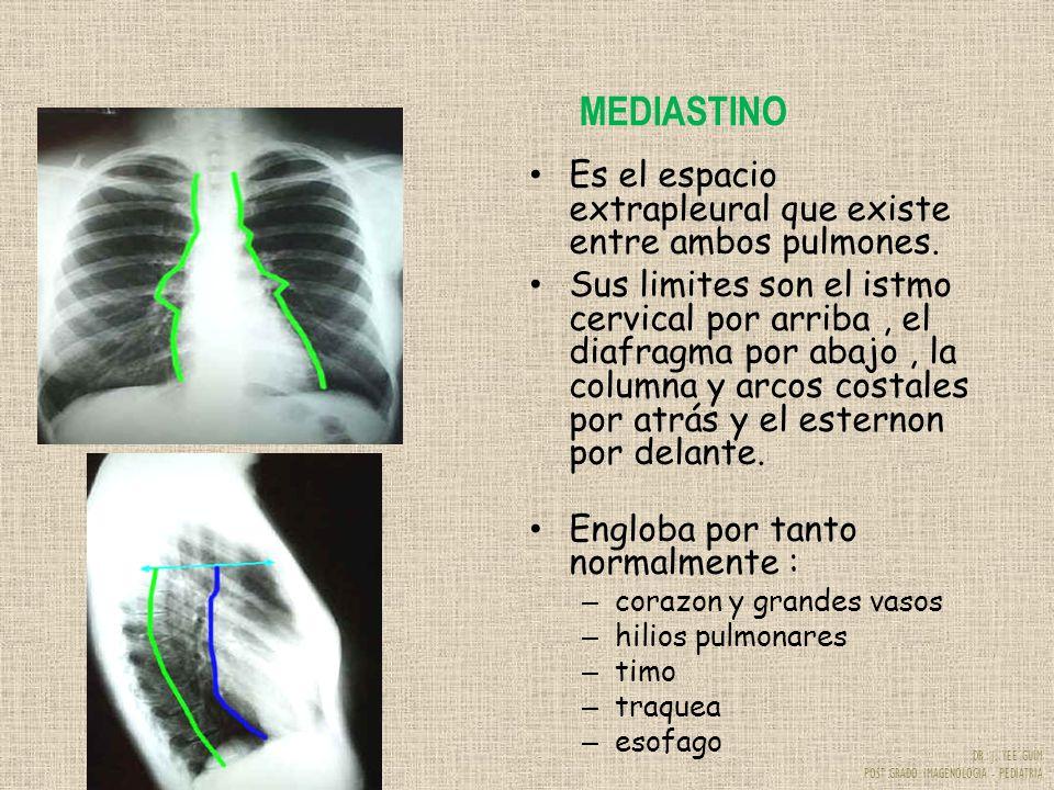 DR. J. YEE GUIM POST GRADO IMAGENOLOGIA - PEDIATRIA MEDIASTINO Es el espacio extrapleural que existe entre ambos pulmones. Sus limites son el istmo ce