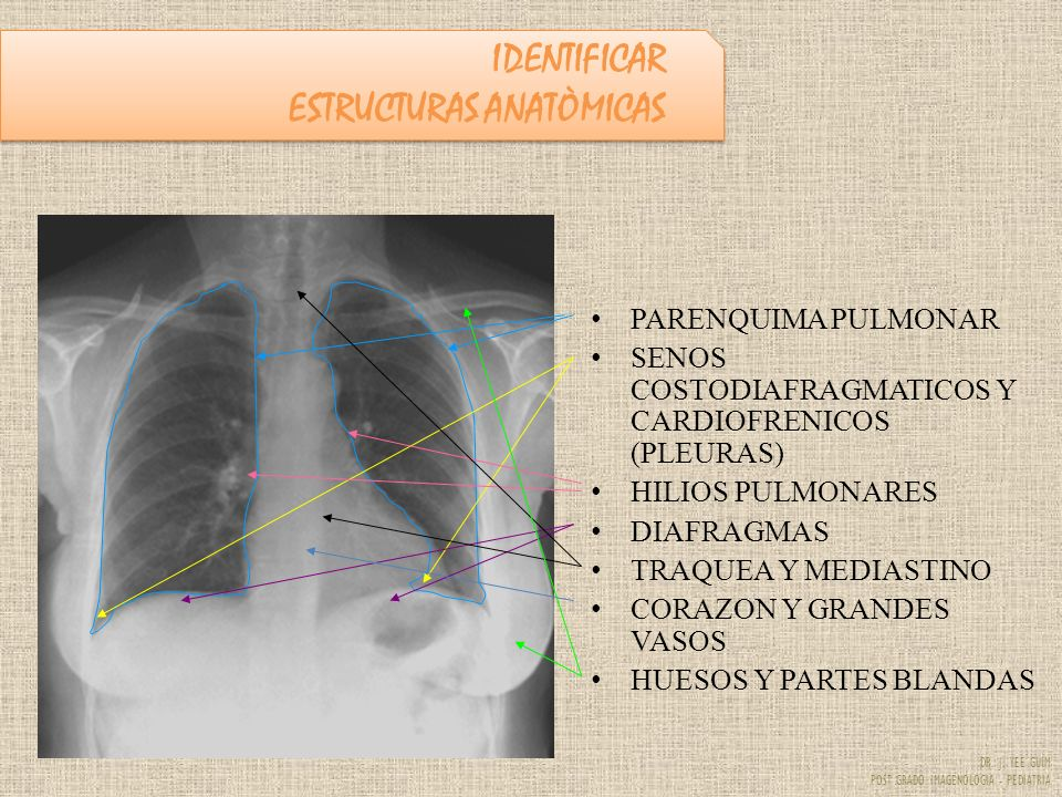 DR. J. YEE GUIM POST GRADO IMAGENOLOGIA - PEDIATRIA PARENQUIMA PULMONAR SENOS COSTODIAFRAGMATICOS Y CARDIOFRENICOS (PLEURAS) HILIOS PULMONARES DIAFRAG
