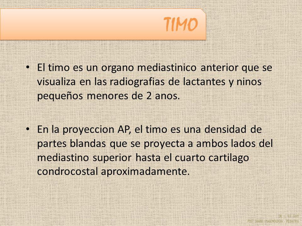 DR. J. YEE GUIM POST GRADO IMAGENOLOGIA - PEDIATRIA TIMO El timo es un organo mediastinico anterior que se visualiza en las radiografias de lactantes