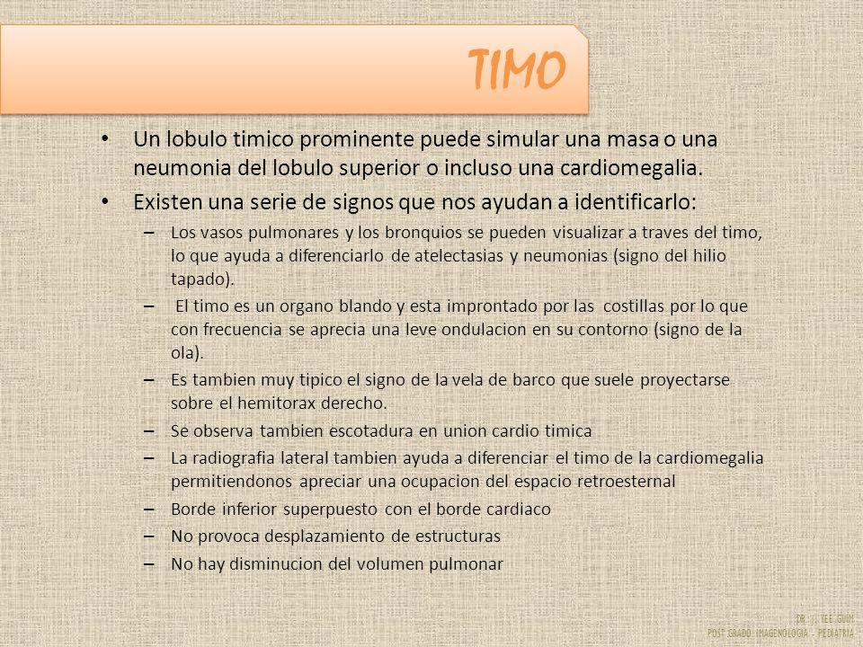 DR. J. YEE GUIM POST GRADO IMAGENOLOGIA - PEDIATRIA TIMO Un lobulo timico prominente puede simular una masa o una neumonia del lobulo superior o inclu