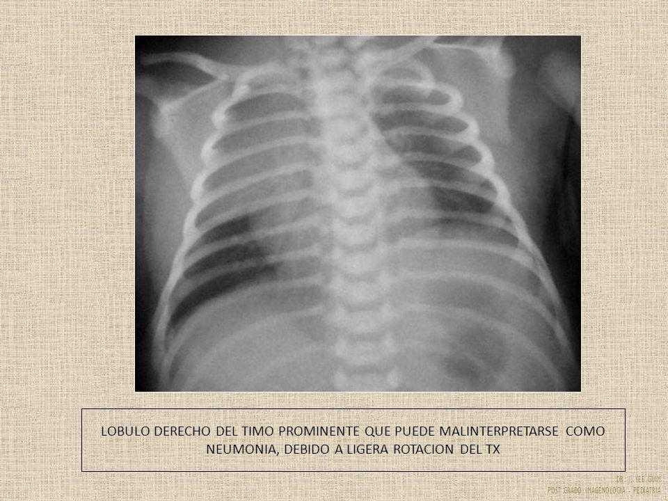 DR. J. YEE GUIM POST GRADO IMAGENOLOGIA - PEDIATRIA LOBULO DERECHO DEL TIMO PROMINENTE QUE PUEDE MALINTERPRETARSE COMO NEUMONIA, DEBIDO A LIGERA ROTAC