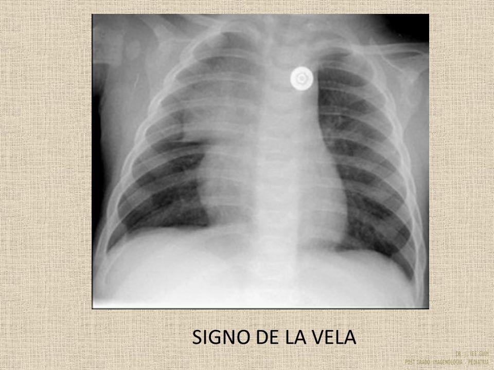 DR. J. YEE GUIM POST GRADO IMAGENOLOGIA - PEDIATRIA SIGNO DE LA VELA