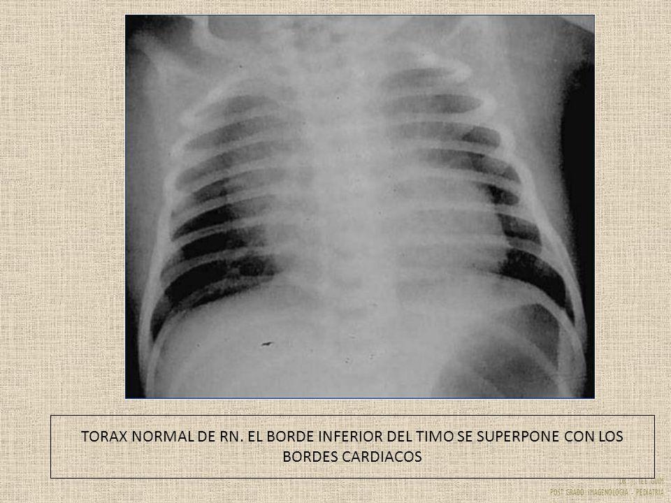 DR. J. YEE GUIM POST GRADO IMAGENOLOGIA - PEDIATRIA TORAX NORMAL DE RN. EL BORDE INFERIOR DEL TIMO SE SUPERPONE CON LOS BORDES CARDIACOS