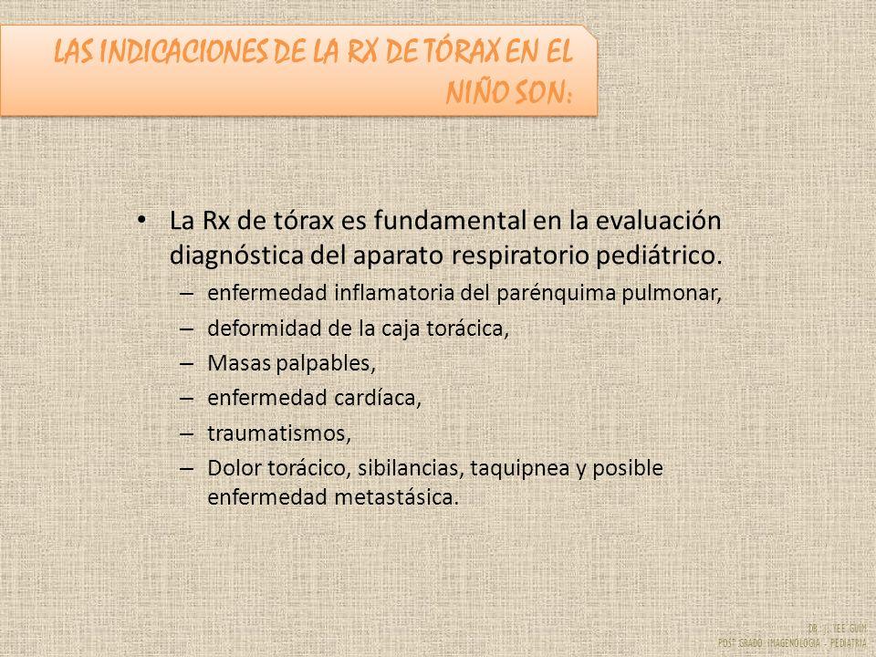 DR. J. YEE GUIM POST GRADO IMAGENOLOGIA - PEDIATRIA La Rx de tórax es fundamental en la evaluación diagnóstica del aparato respiratorio pediátrico. –