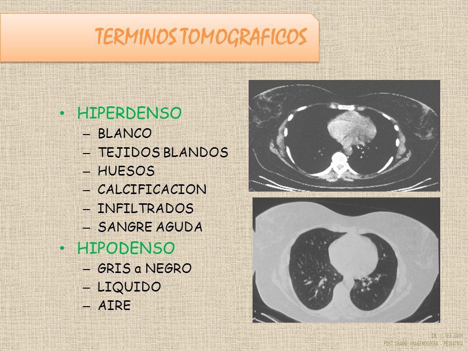 DR. J. YEE GUIM POST GRADO IMAGENOLOGIA - PEDIATRIA TERMINOS TOMOGRAFICOS HIPERDENSO – BLANCO – TEJIDOS BLANDOS – HUESOS – CALCIFICACION – INFILTRADOS
