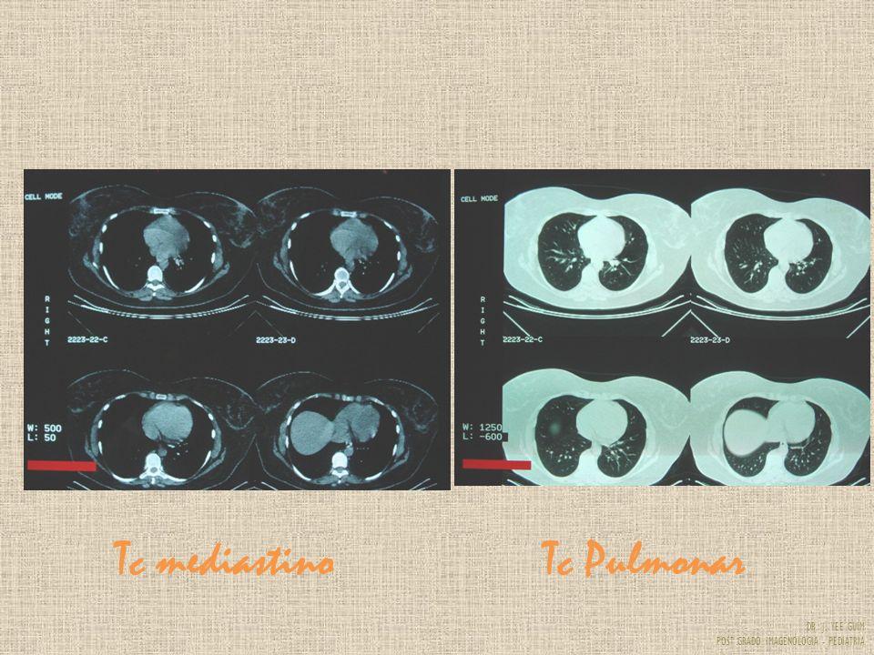 DR. J. YEE GUIM POST GRADO IMAGENOLOGIA - PEDIATRIA Tc mediastinoTc Pulmonar