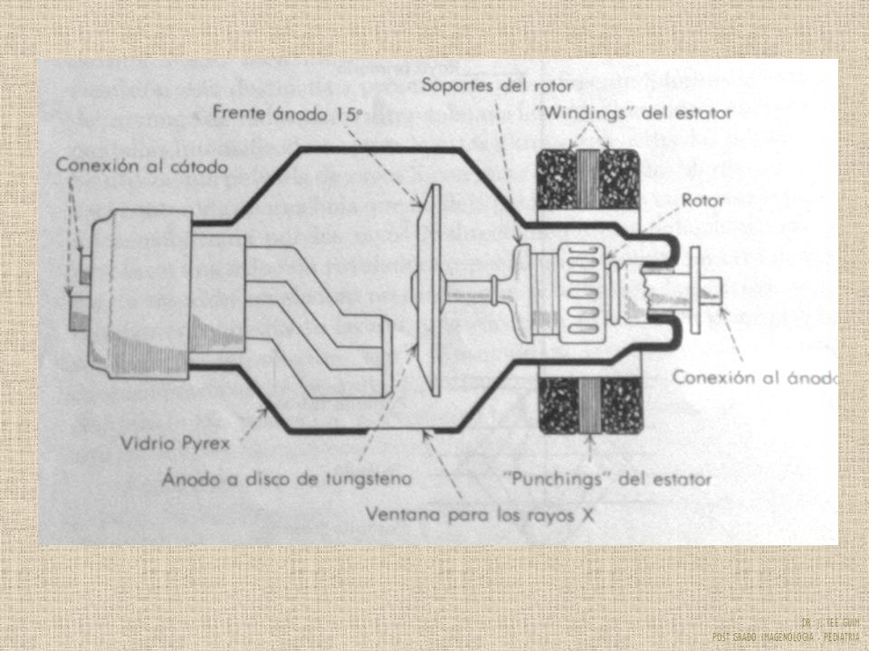 DR. J. YEE GUIM POST GRADO IMAGENOLOGIA - PEDIATRIA RX bien inspirada RX mal inspirada
