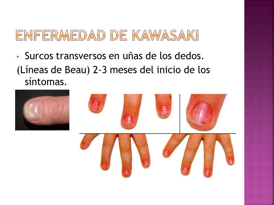 Surcos transversos en uñas de los dedos. (Líneas de Beau) 2-3 meses del inicio de los síntomas.