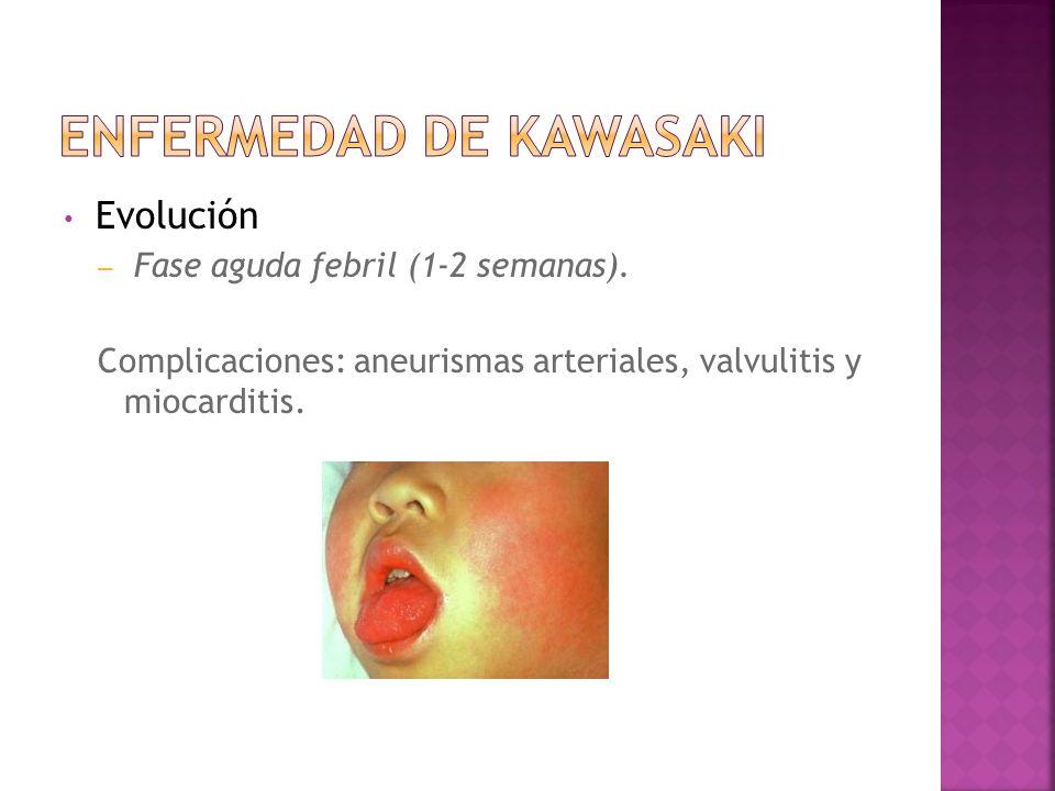 Evolución – Fase aguda febril (1-2 semanas). Complicaciones: aneurismas arteriales, valvulitis y miocarditis.