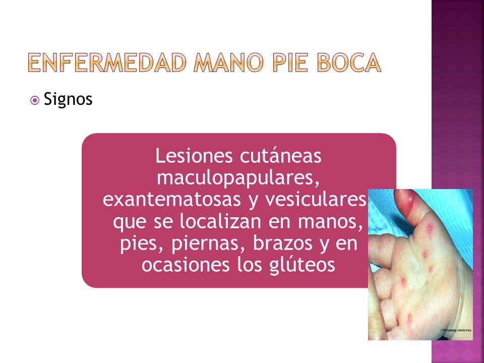 Signos Lesiones cutáneas maculopapulares, exantematosas y vesiculares, que se localizan en manos, pies, piernas, brazos y en ocasiones los glúteos