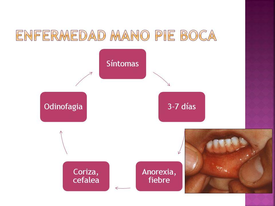 Síntomas3-7 días Anorexia, fiebre Coriza, cefalea Odinofagia