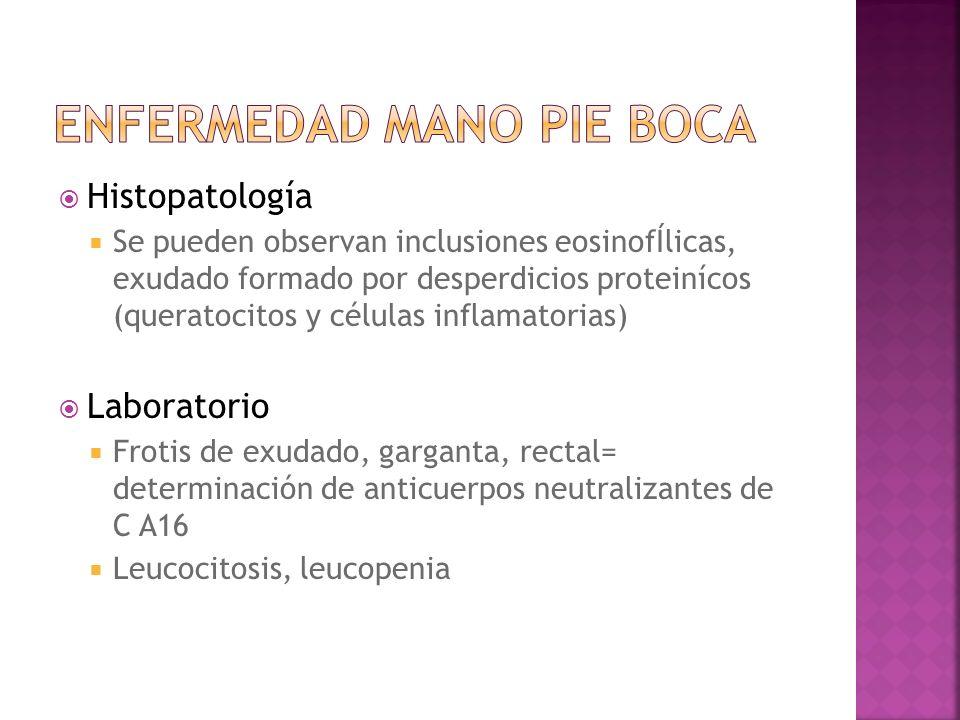 Histopatología Se pueden observan inclusiones eosinofÍlicas, exudado formado por desperdicios proteinícos (queratocitos y células inflamatorias) Labor