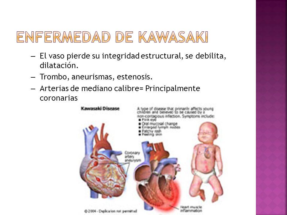 – El vaso pierde su integridad estructural, se debilita, dilatación. – Trombo, aneurismas, estenosis. – Arterias de mediano calibre= Principalmente co