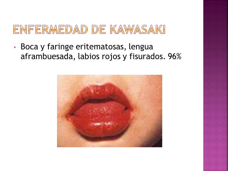 Boca y faringe eritematosas, lengua aframbuesada, labios rojos y fisurados. 96%