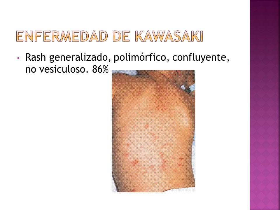 Rash generalizado, polimórfico, confluyente, no vesiculoso. 86%