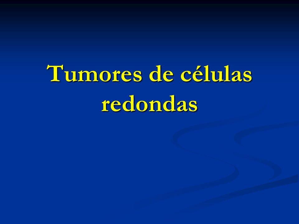Linfoma linfoblástico Tumor hueso solitario Tumor hueso solitario Micro: c redondas Micro: c redondas IHQ: IHQ: TdT + TdT + CD43 + CD43 + CD99 + CD99 + CD79a + CD79a + CD20 +/- CD20 +/-