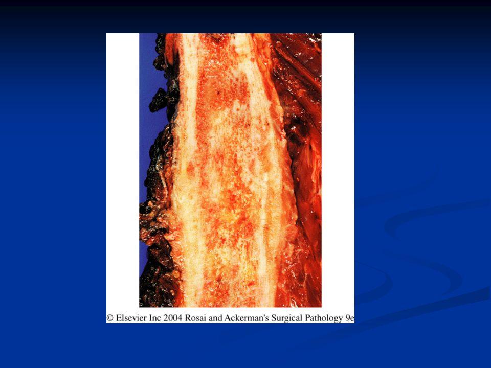 Rabdomiosarcoma Sarcoma con diferenciación a m esquelético Sarcoma con diferenciación a m esquelético CLINICA: CLINICA: 5-15 años, 10% adultos 5-15 años, 10% adultos Masa indolora, pérdida fuerza Masa indolora, pérdida fuerza C y C, miembros, tronco, genitourinario C y C, miembros, tronco, genitourinario MACRO: MACRO: Infiltrativo, polipoide (botroide) Infiltrativo, polipoide (botroide) Corte: blando/firme Corte: blando/firme