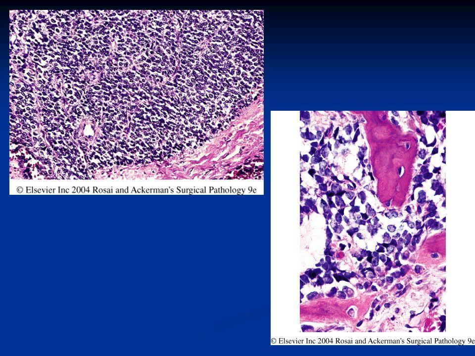 Rabdomiosarcoma MICRO: MICRO: Embrionario: estroma mixoide c redondas/fusiforme.