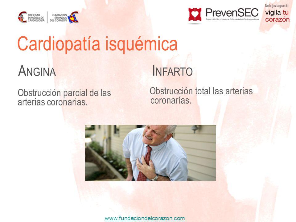 www.fundaciondelcorazon.com Cardiopatía isquémica A NGINA I NFARTO Obstrucción parcial de las arterias coronarias. Obstrucción total las arterias coro