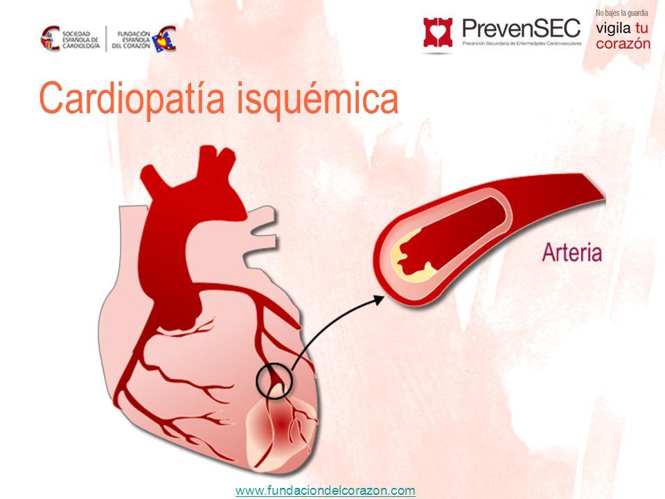 www.fundaciondelcorazon.com Colesterol Medicamentos ESTATINAS RosuvastatinaSimvastatina