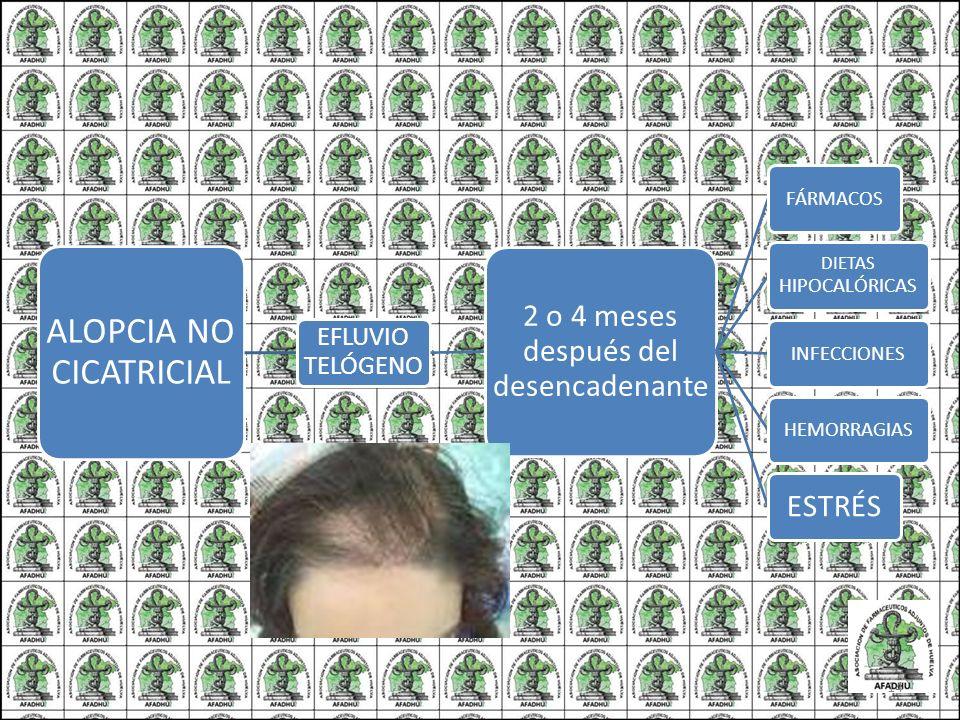 ALOPCIA NO CICATRICIAL EFLUVIO TELÓGENO 2 o 4 meses después del desencadenante FÁRMACOS DIETAS HIPOCALÓRICAS INFECCIONESHEMORRAGIAS ESTRÉS 14