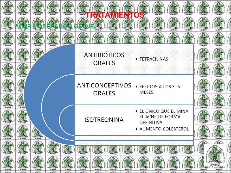 TRATAMIENTOS ANTIBIÓTICOS ORALES ANTICONCEPTIVOS ORALES ISOTREONINA TETRACILINAS EFECTOS A LOS 3- 6 MESES EL ÚNICO QUE ELIMINA EL ACNE DE FORMA DEFINI