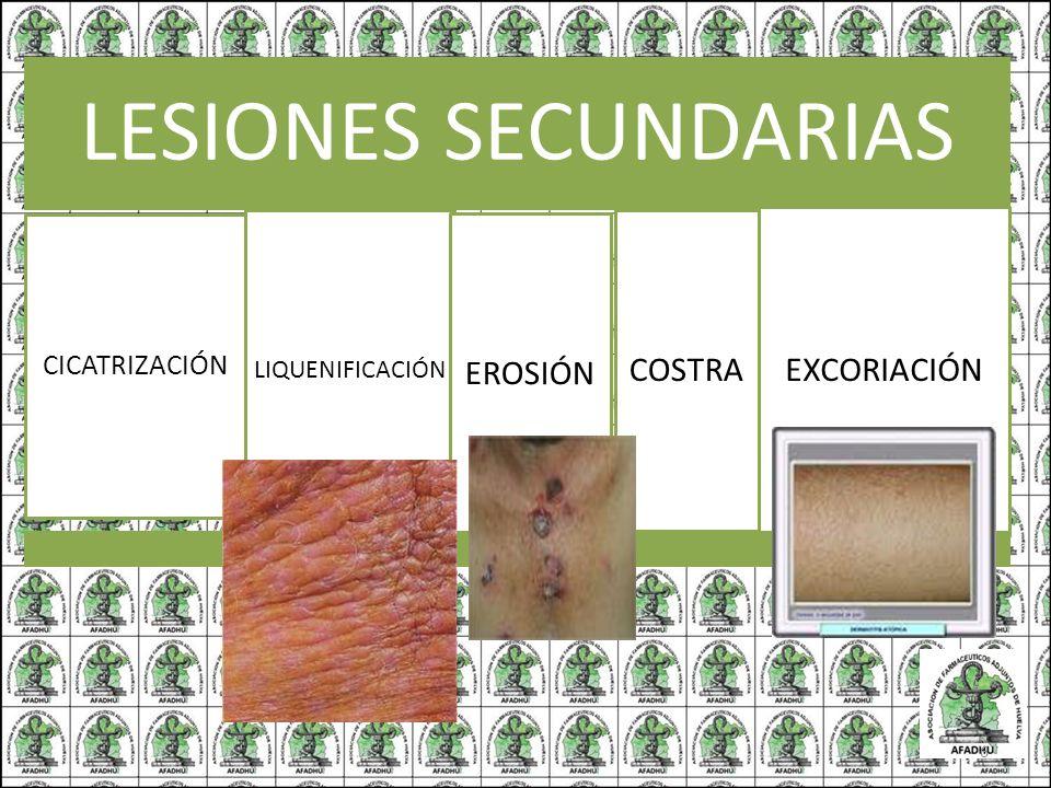 LESIONES SECUNDARIAS CICATRIZACIÓN LIQUENIFICACIÓN EROSIÓN COSTRA EXCORIACIÓN 6