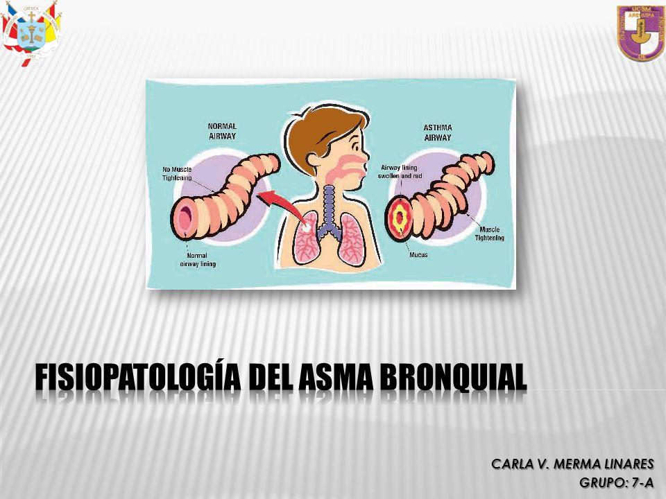 Zafirlukast y Montelukast: Eosinofilia y vasculitis sistémica.