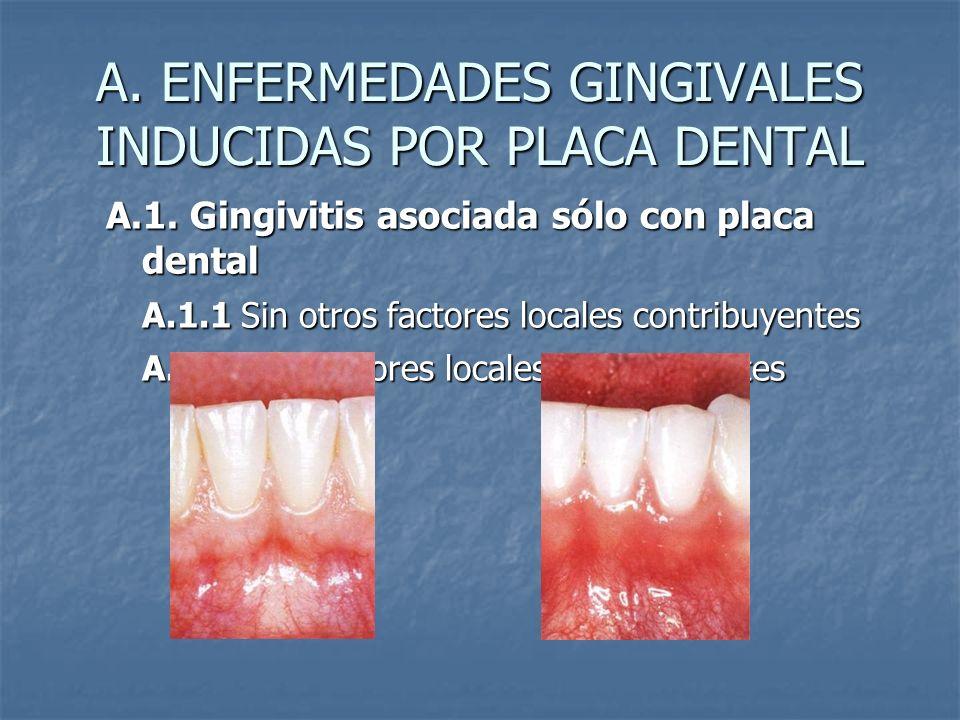 A. ENFERMEDADES GINGIVALES INDUCIDAS POR PLACA DENTAL A.1. Gingivitis asociada sólo con placa dental A.1.1 Sin otros factores locales contribuyentes A