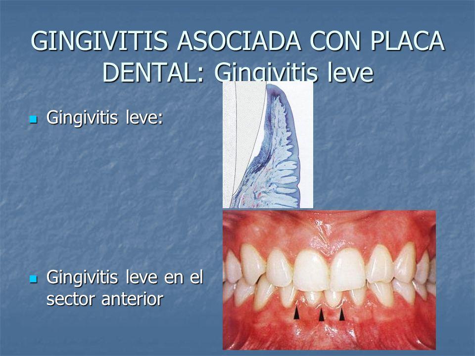GINGIVITIS ASOCIADA CON PLACA DENTAL: Gingivitis leve Gingivitis leve: Gingivitis leve: Gingivitis leve en el sector anterior Gingivitis leve en el se