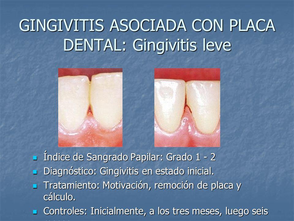 GINGIVITIS ASOCIADA CON PLACA DENTAL: Gingivitis leve Índice de Sangrado Papilar: Grado 1 - 2 Índice de Sangrado Papilar: Grado 1 - 2 Diagnóstico: Gin
