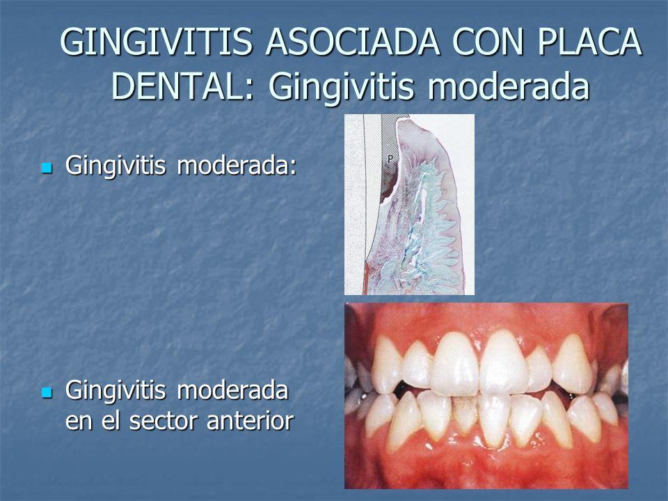 GINGIVITIS ASOCIADA CON PLACA DENTAL: Gingivitis moderada Gingivitis moderada: Gingivitis moderada: Gingivitis moderada en el sector anterior Gingivit