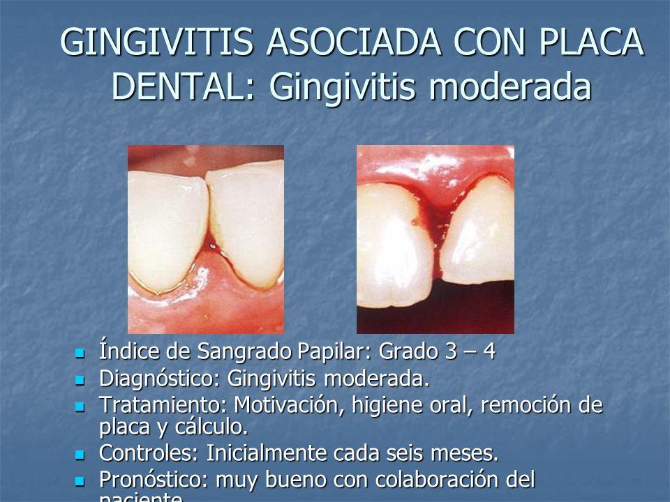 GINGIVITIS ASOCIADA CON PLACA DENTAL: Gingivitis moderada Índice de Sangrado Papilar: Grado 3 – 4 Índice de Sangrado Papilar: Grado 3 – 4 Diagnóstico: