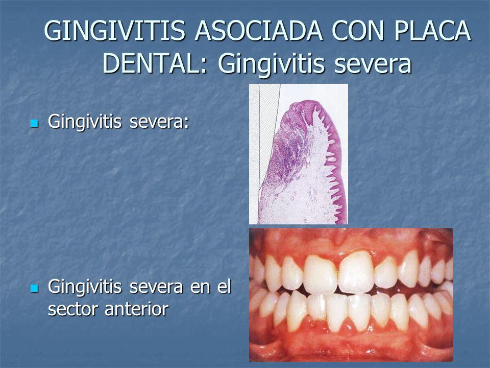 GINGIVITIS ASOCIADA CON PLACA DENTAL: Gingivitis severa Gingivitis severa: Gingivitis severa: Gingivitis severa en el sector anterior Gingivitis sever