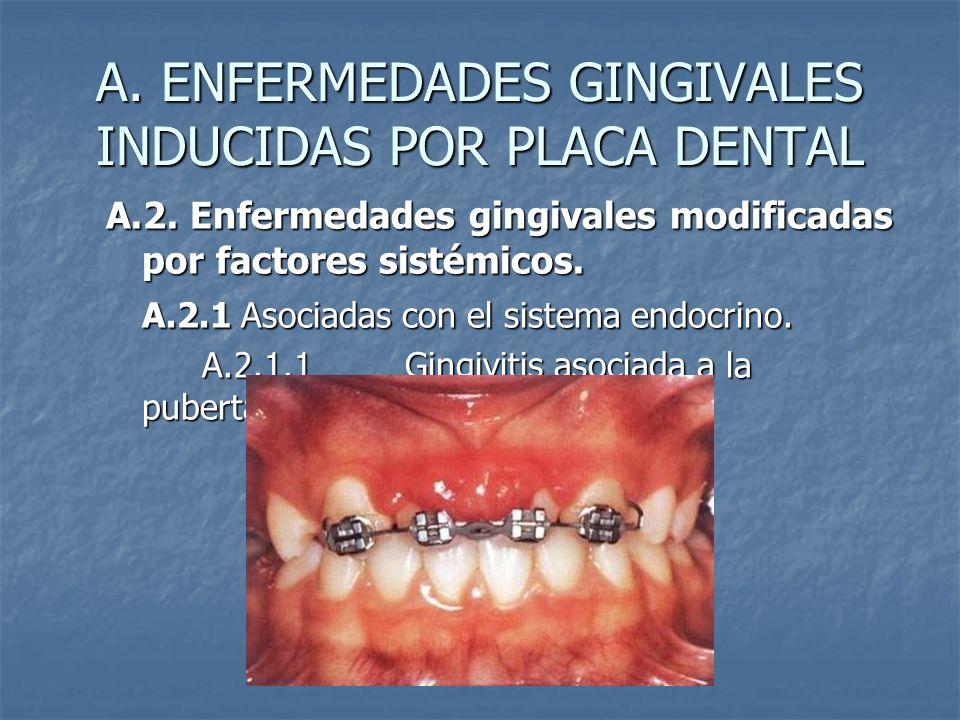 A. ENFERMEDADES GINGIVALES INDUCIDAS POR PLACA DENTAL A.2. Enfermedades gingivales modificadas por factores sistémicos. A.2.1 Asociadas con el sistema