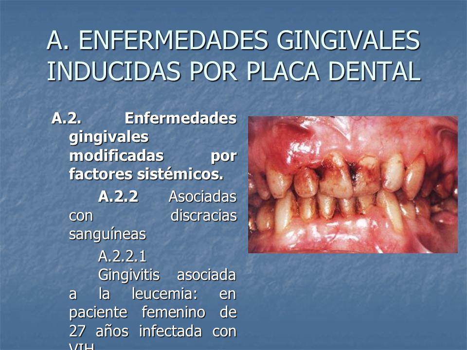 A. ENFERMEDADES GINGIVALES INDUCIDAS POR PLACA DENTAL A.2. Enfermedades gingivales modificadas por factores sistémicos. A.2.2 Asociadas con discracias