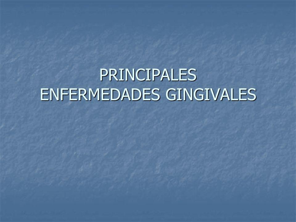 GINGIVITIS ASOCIADA CON PLACA DENTAL: Gingivitis moderada Gingivitis moderada: Gingivitis moderada: Gingivitis moderada en el sector anterior Gingivitis moderada en el sector anterior