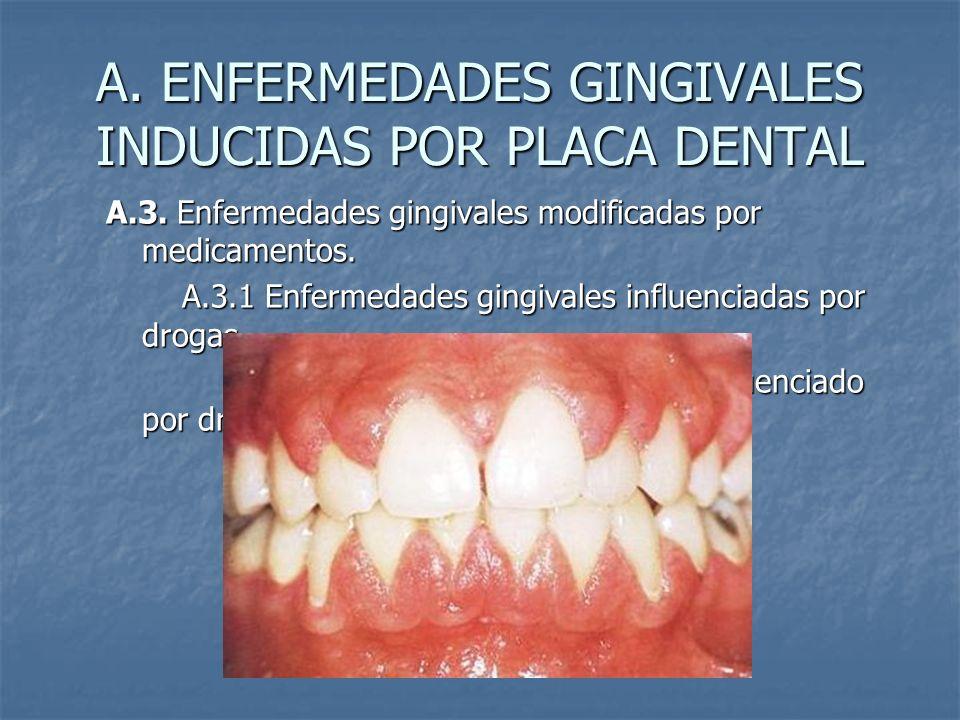 A. ENFERMEDADES GINGIVALES INDUCIDAS POR PLACA DENTAL A.3. Enfermedades gingivales modificadas por medicamentos. A.3.1 Enfermedades gingivales influen