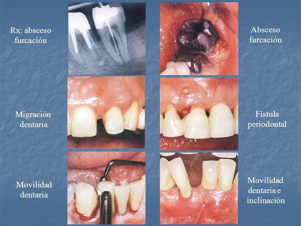 Rx: absceso furcación Migración dentaria Movilidad dentaria Absceso furcación Fístula periodontal Movilidad dentaria e inclinación
