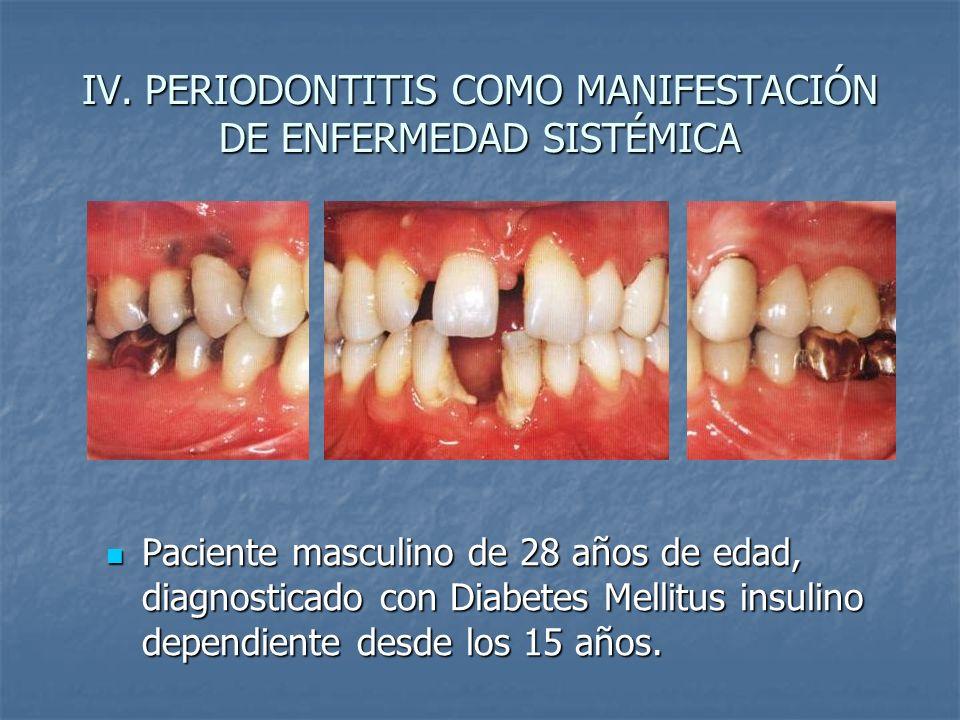 IV. PERIODONTITIS COMO MANIFESTACIÓN DE ENFERMEDAD SISTÉMICA Paciente masculino de 28 años de edad, diagnosticado con Diabetes Mellitus insulino depen