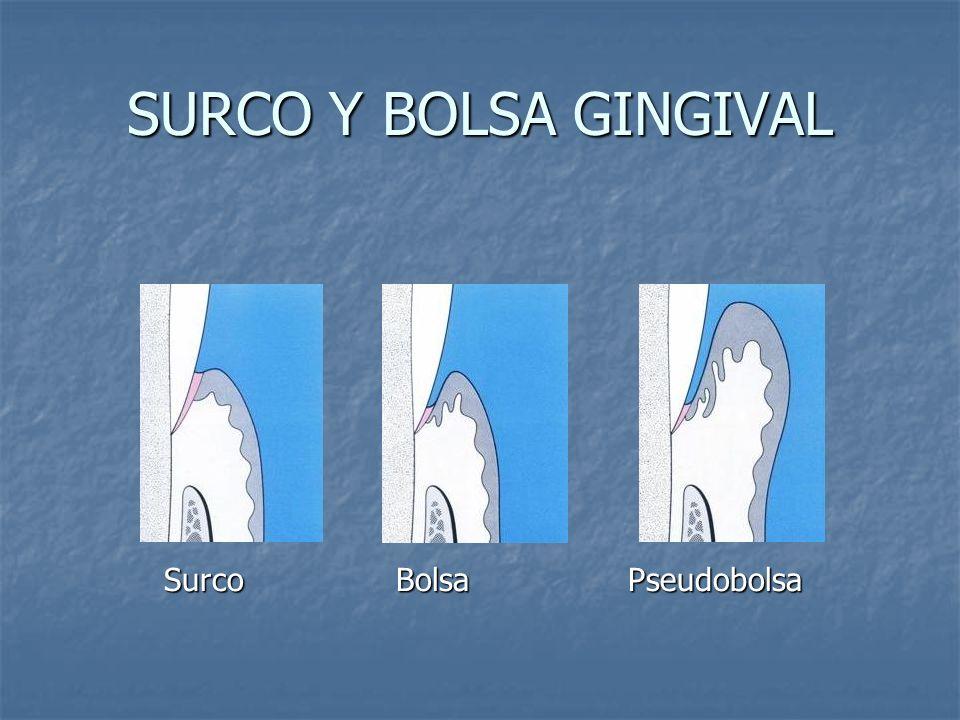 SURCO Y BOLSA GINGIVAL Surco Bolsa Pseudobolsa Surco Bolsa Pseudobolsa
