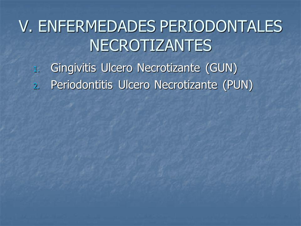 V. ENFERMEDADES PERIODONTALES NECROTIZANTES 1. Gingivitis Ulcero Necrotizante (GUN) 2. Periodontitis Ulcero Necrotizante (PUN)