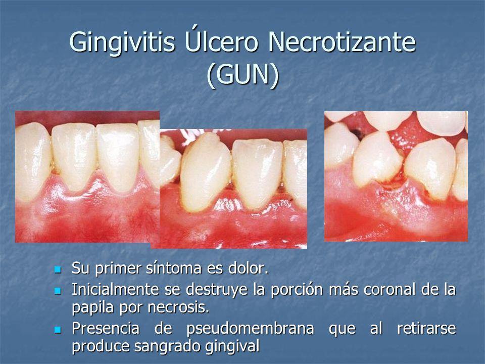 Gingivitis Úlcero Necrotizante (GUN) Su primer síntoma es dolor. Su primer síntoma es dolor. Inicialmente se destruye la porción más coronal de la pap