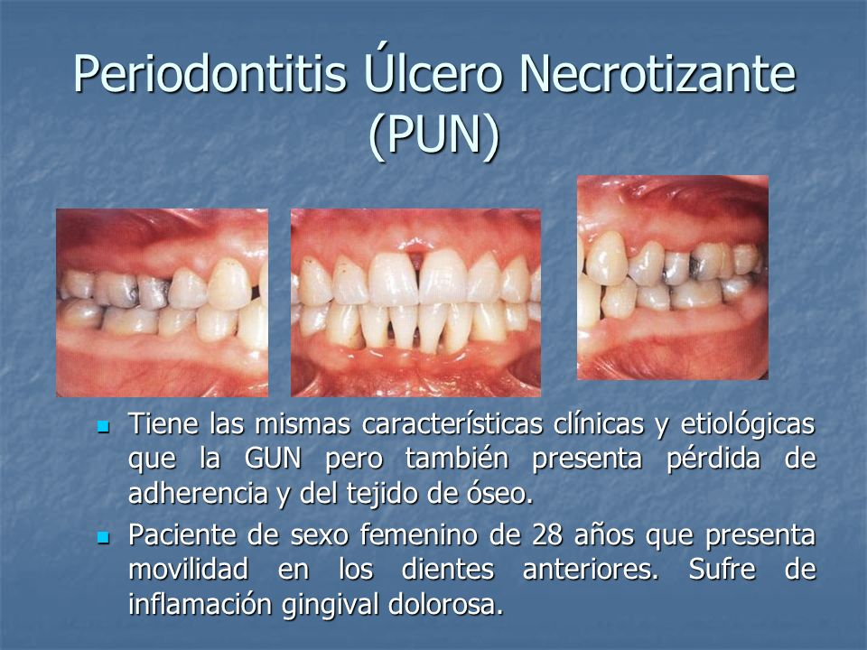 Periodontitis Úlcero Necrotizante (PUN) Tiene las mismas características clínicas y etiológicas que la GUN pero también presenta pérdida de adherencia