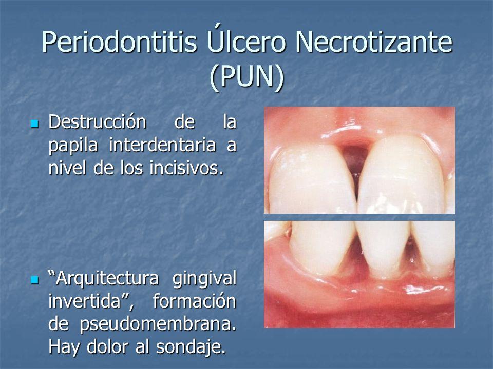 Periodontitis Úlcero Necrotizante (PUN) Destrucción de la papila interdentaria a nivel de los incisivos. Destrucción de la papila interdentaria a nive