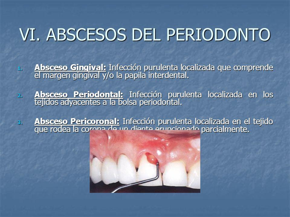 VI. ABSCESOS DEL PERIODONTO 1. Absceso Gingival: Infección purulenta localizada que comprende el margen gingival y/o la papila interdental. 2. Absceso