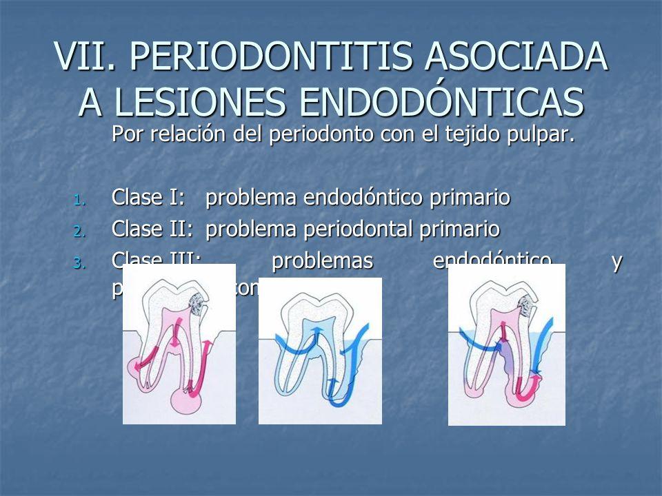 VII. PERIODONTITIS ASOCIADA A LESIONES ENDODÓNTICAS Por relación del periodonto con el tejido pulpar. 1. Clase I: problema endodóntico primario 2. Cla