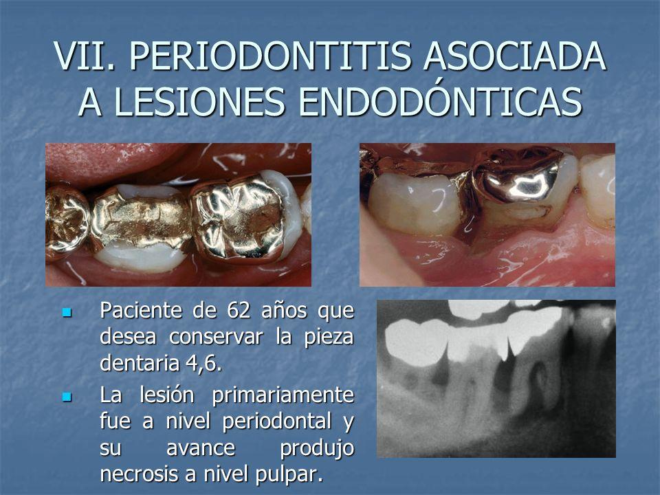 VII. PERIODONTITIS ASOCIADA A LESIONES ENDODÓNTICAS Paciente de 62 años que desea conservar la pieza dentaria 4,6. Paciente de 62 años que desea conse